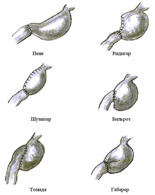 Пилоропластика
